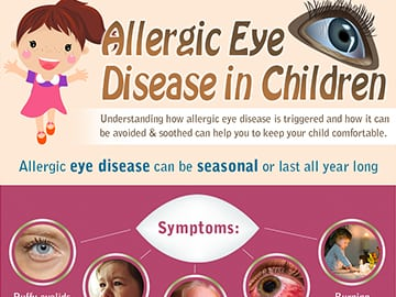 Allergic-Eye-Disease-in-Children-by-Childrens-Eye-Center-of-Orange-County-Thumb