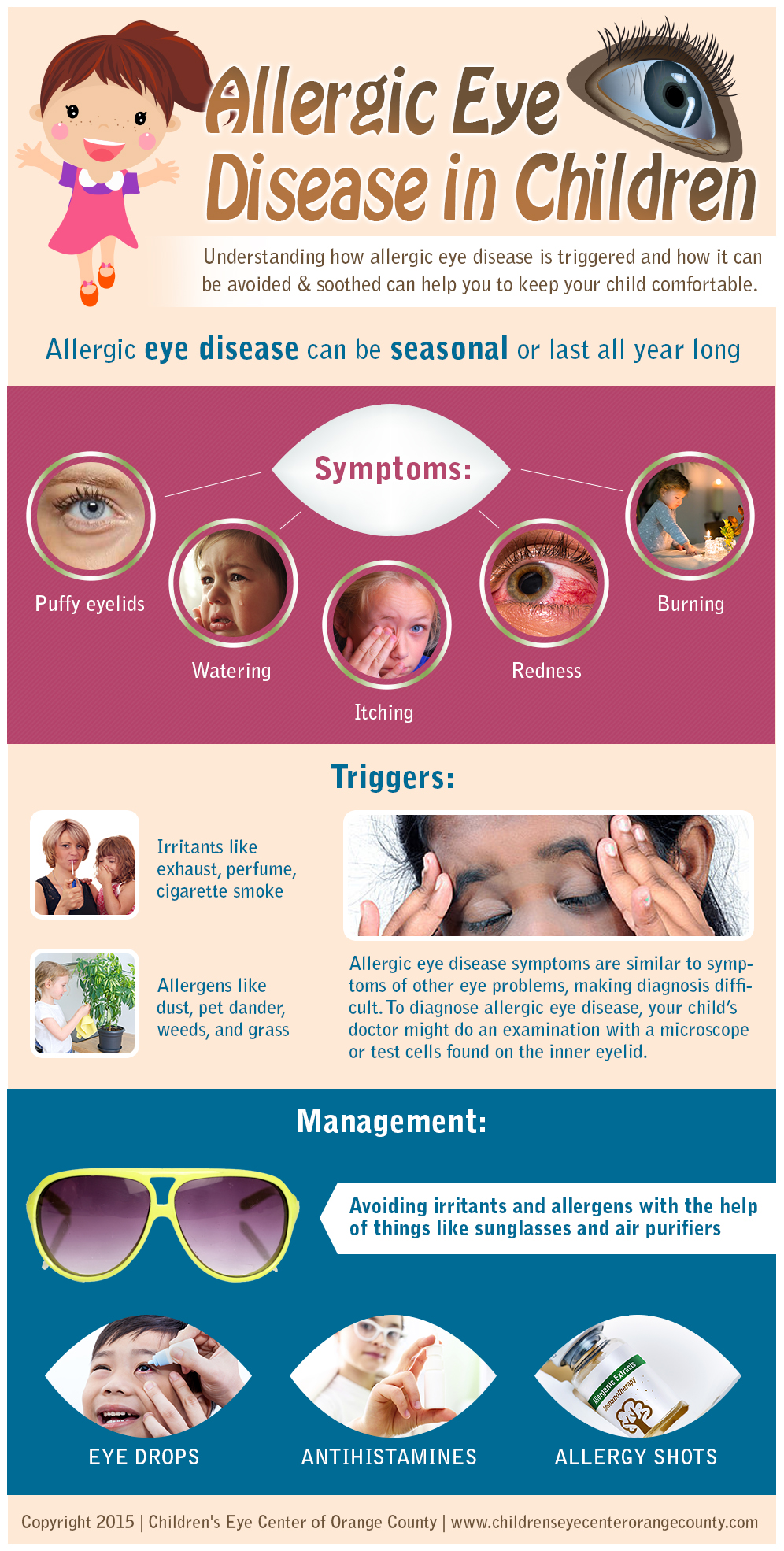 Allergic-Eye-Disease-in-Children-by-Childrens-Eye-Center-of-Orange-County