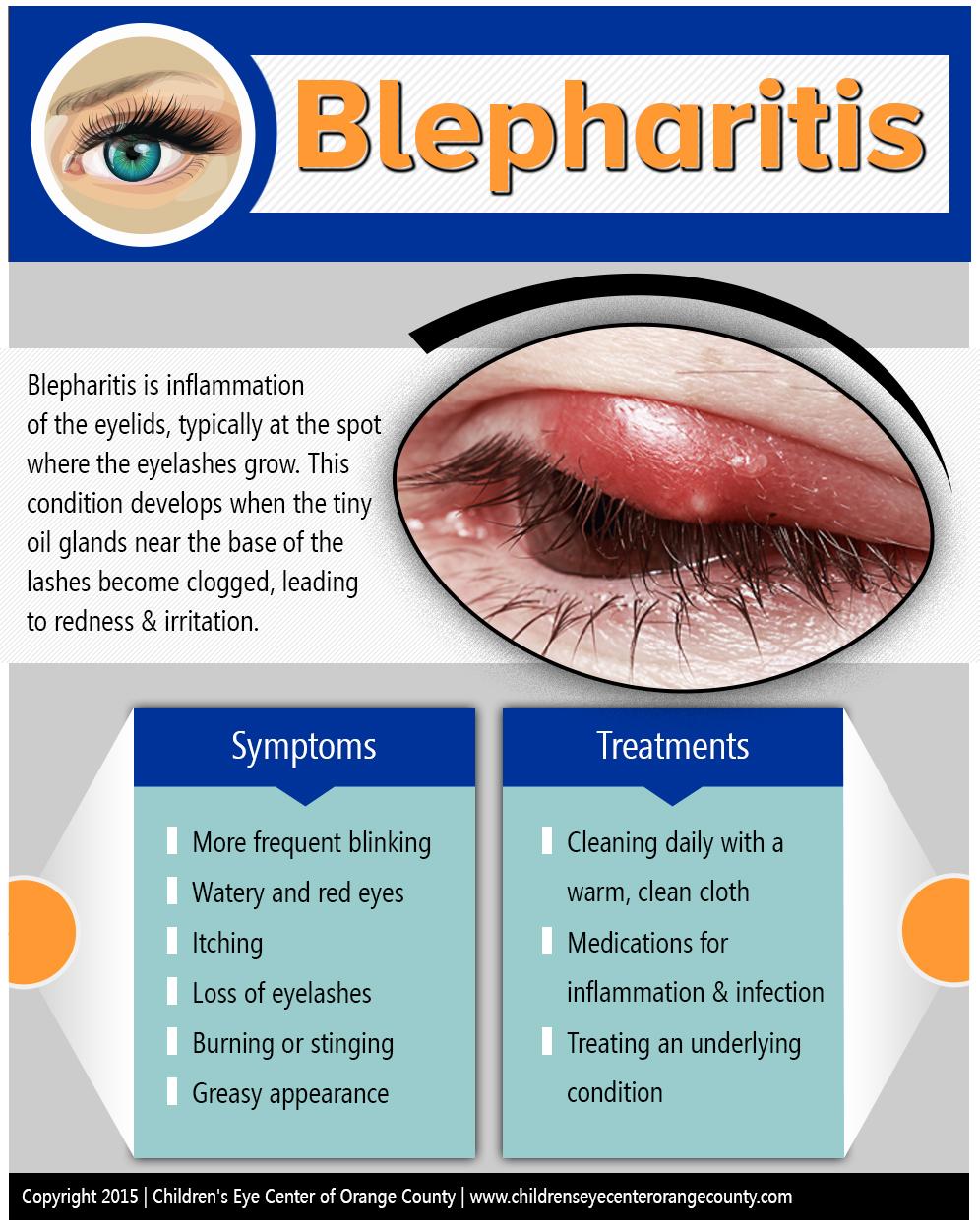 Blepharitis-by-Childrens-Eye-Center