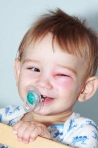 Eye-Discharge-in-Kids-Childrens-Eye-Center-OC