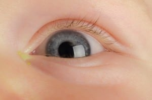 Eye-Discharge-in-Toddlers-Childrens-Eye-Center-OC