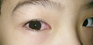 Eye-Infection-Treatment-for-Kids-Childrens-Eye-Center-OC