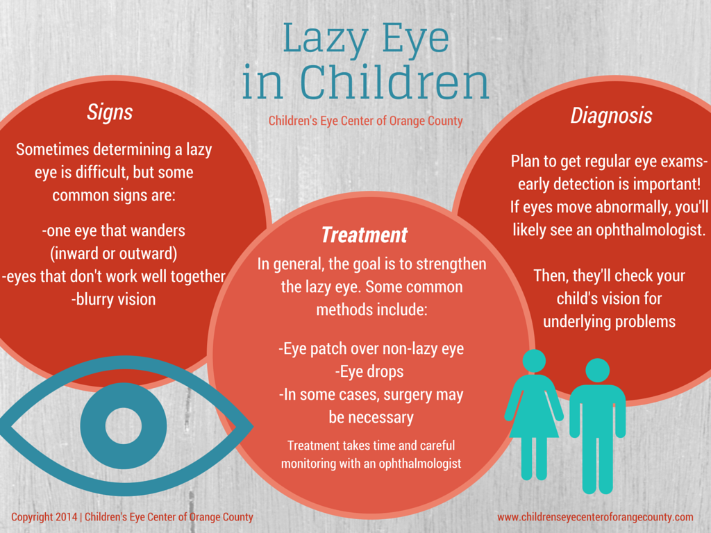 Lazy Eye in Children by Childrens Eye Center of Orange County