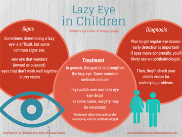 Lazy-Eye-in-Children-by-Childrens-Eye-Center-of-Orange-County