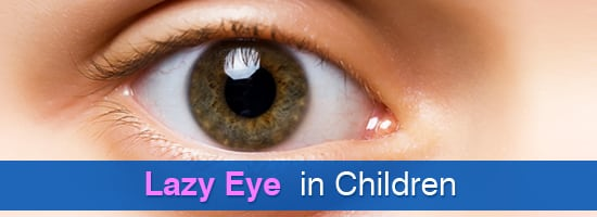 Lazy-Eye-in-Children1-Childrens-Eye-Center-OC