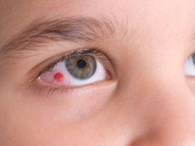 RedEye-Childrens-Eye-Center-OC